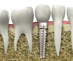 implantes-img1