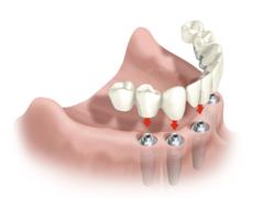 implantes-img2
