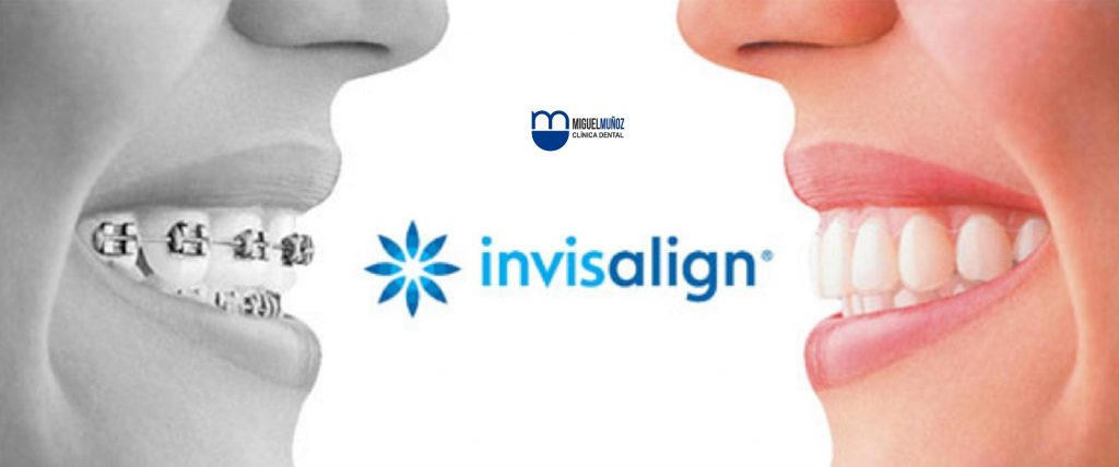 Ortodoncia invisalign_munozdental