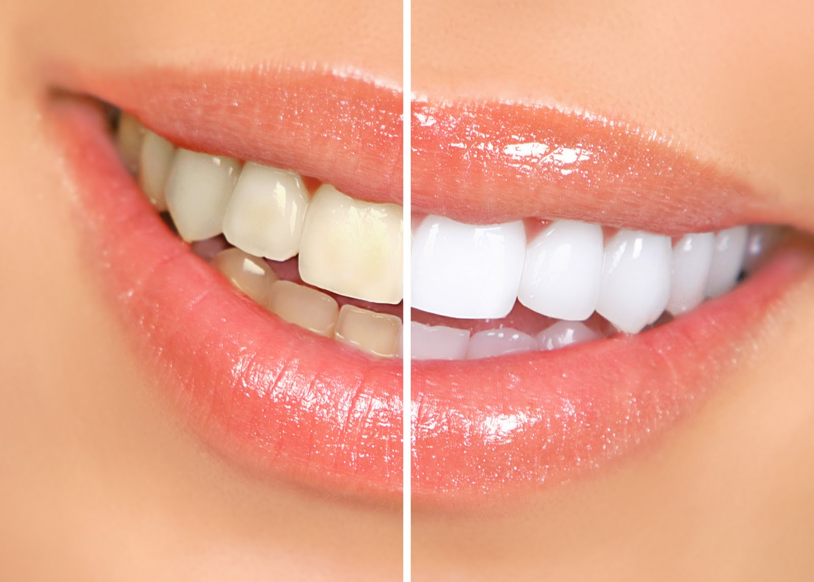 manchas en los dientes