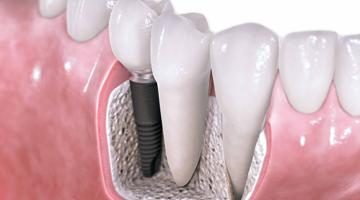 implantes munozdental