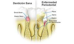 periodoncia_munozdental