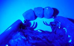 protesis-img3