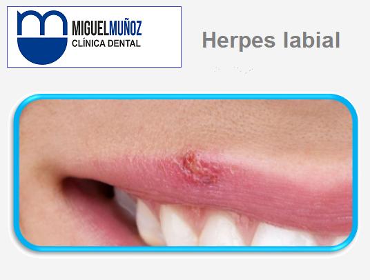 Herpes_labial