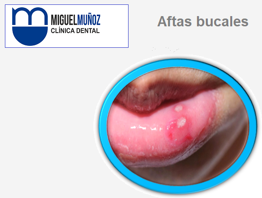 aftas_bucales_cartel